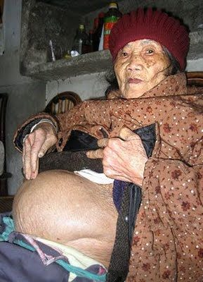 Chinese Woman pregnant Stone Baby 60 Year