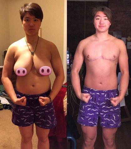 Man has boob